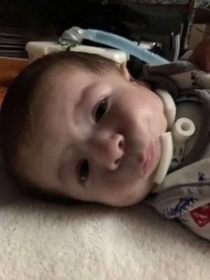 Matthew Megan Hulen Nager Syndrome Craniofacial Assuaged