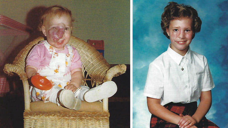 Images of Jennifer Wallace's face showing her hemangioma at 11 months and after skin graft surgery in the fourth grade