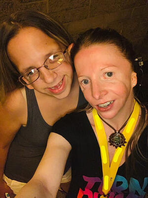 Friends Sherilee and Cynthia born with Treacher Collins Syndrome